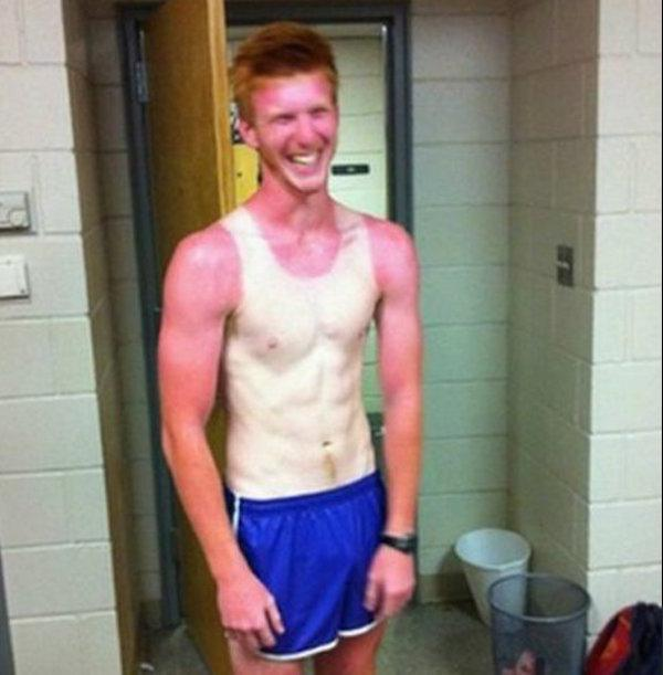 a-friendly-and-painful-reminder-to-wear-sunscreen-this-weekend-27-photos-12