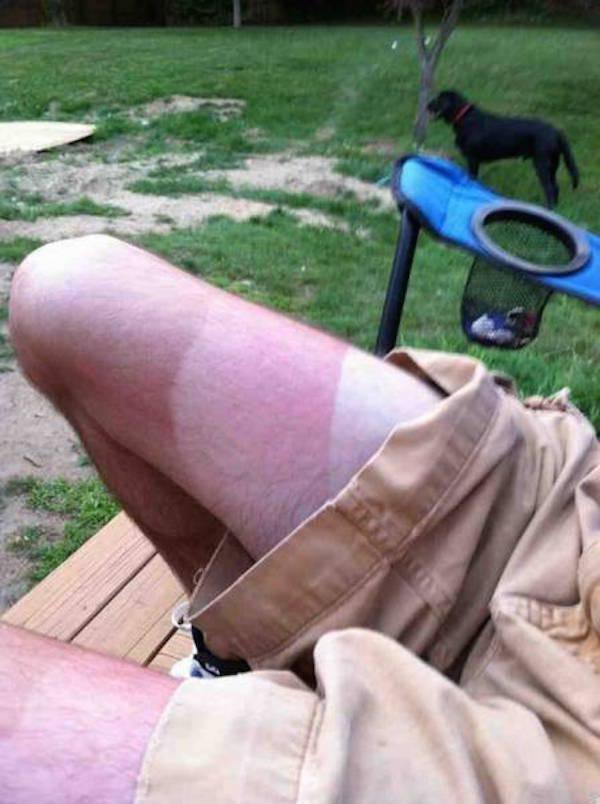 a-friendly-and-painful-reminder-to-wear-sunscreen-this-weekend-27-photos-20