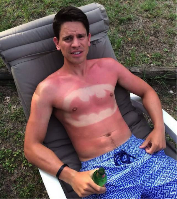 a-friendly-and-painful-reminder-to-wear-sunscreen-this-weekend-27-photos-23