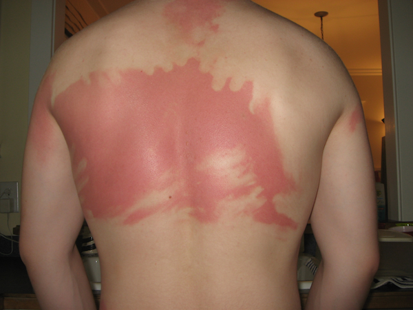 a-friendly-and-painful-reminder-to-wear-sunscreen-this-weekend-27-photos-24